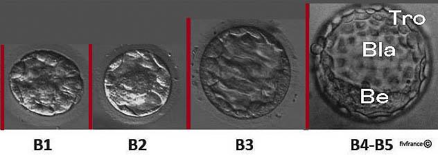 transfert embryon j5