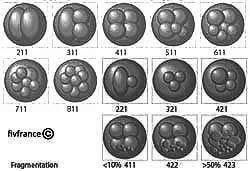 fiv icsi blastocyste